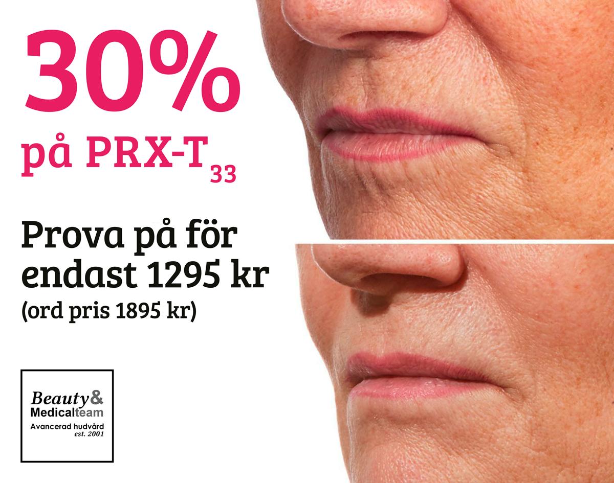 PRX-T33 Erbjudande 30 procent